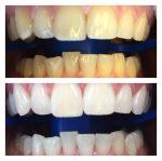 Best Dentist Cape Town - Optismile.co.za
